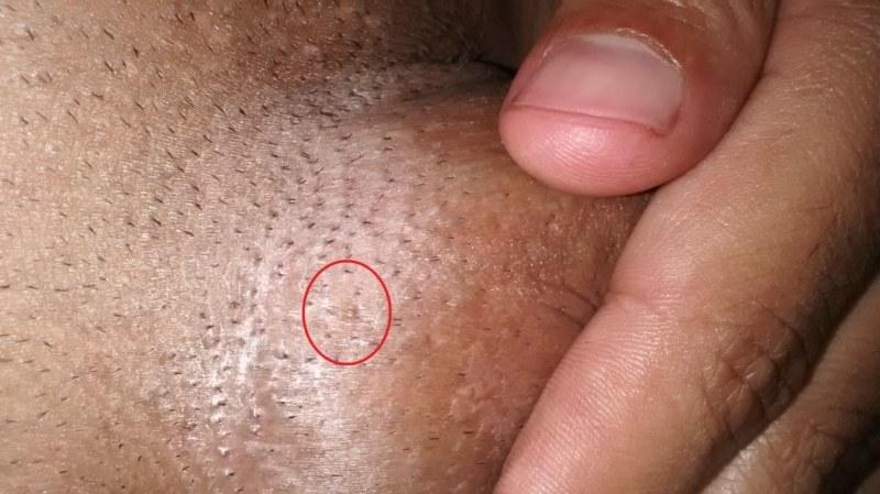 Hpv vírus krém. A vírusos szemölcs előfordulása