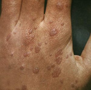 Flat warts on the hands